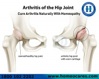 Image for Best Homeopathy Treatment For Arthritis Problem In HSR Layout
