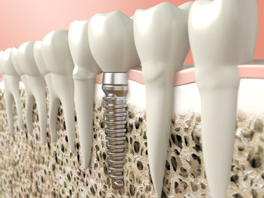 Image for NW Calgary Dental Implants