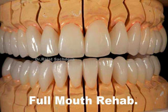 Image for Dental Implant Is Really More Than Just A Treatment!!