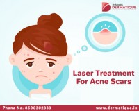 Image for Best Laser treatment for Acne Scars in Hyderabad