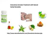 Image for Natural Herbal Treatment For Granuloma Annulare