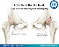 Image for Homeopathy Treatment For Arthritis In Trichy
