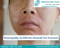 Image for Homeopathy Treatment For Psoriasis