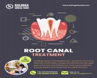 Image for Root canal treatment cost in Bhubaneswar