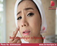 Image for Best Dermatologist in Hyderabad
