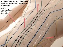 Image for  acupuncture treatment in hyderabad