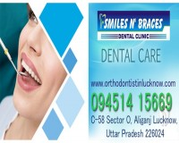 Image for Implant in Lucknow | Dentist in Lucknow | Braces in Lucknow