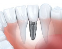 Image for Dental Implants near Me | Seensmile