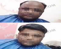 Image for Hair Wig Shop in Delhi