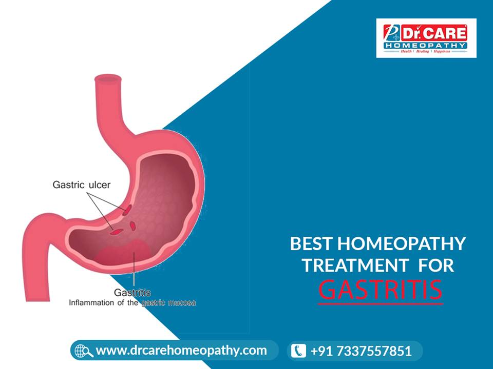 Image for  Homeopathy Clinics In Bangalore|homeopathy Treatment for Gastritis