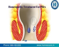Image for Cure Piles With Homeopathy in Indira Nagar