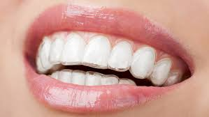 Image for Choose right braces to wear and start smiling with confidence again