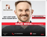 Image for Hair Wigs in Delhi