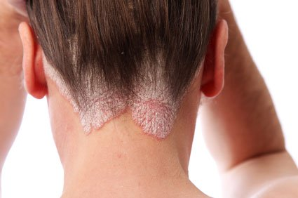 Psoriasis Treatment by Best Dermatologist in Mumbai