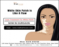 Image for White Patches Treatment